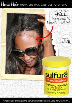 Regrow Bald Edges & Avoid Premature Baldness