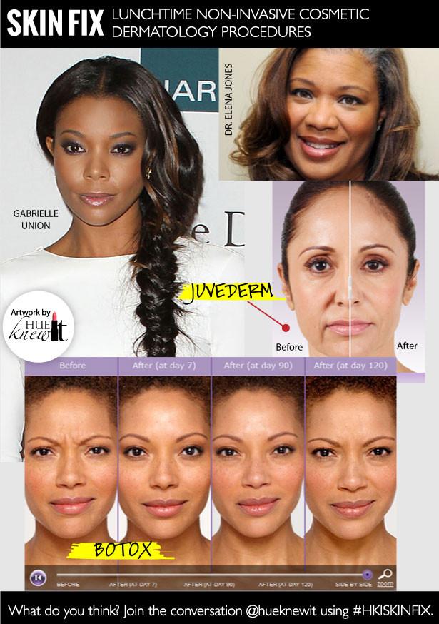 2 Non-Invasive Cosmetic Dermatology Procedures