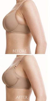 Bye-Bye Embarrassing Bra Fat!