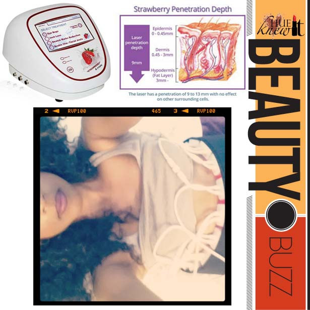 Lay Back & Melt Body Fat With A Strawberry Laser Lipo Treatment