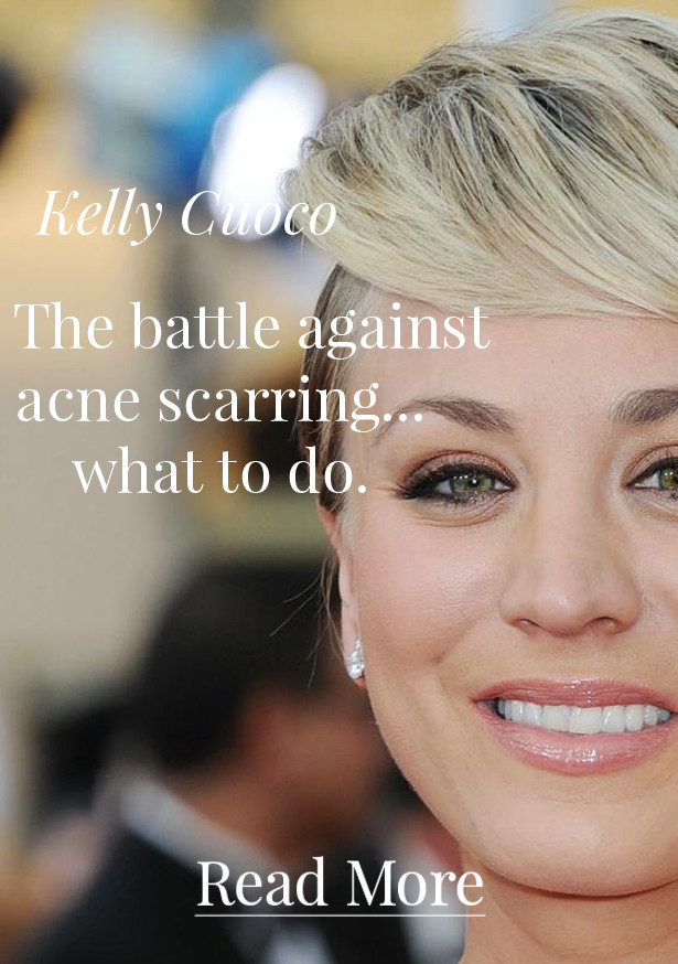 Hollywood's Answer To Acne Scarring