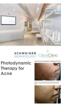 NEW CONCEPT IN ACNE TREATMENT FINALLY OPENS IT'S DOORS