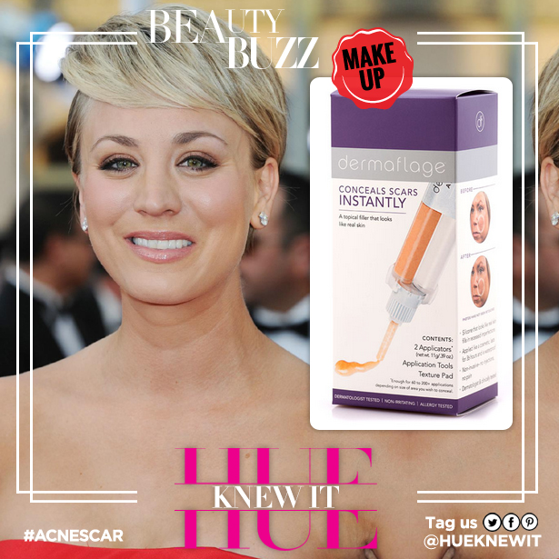 Kaley Cuoco acne scarring