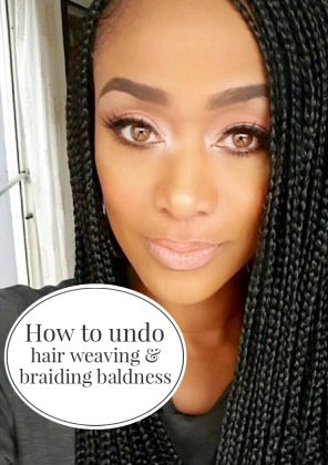 MANE MONDAY: Reverse Thinning Hair Due To Weaving and Braiding